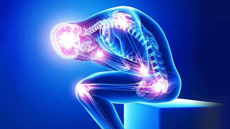Schmerzpunkte am Körper eines stilisierten Menschen